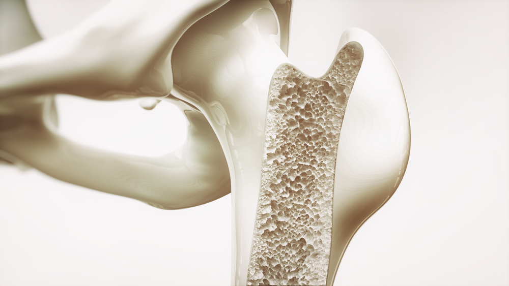 osteoporosis - Orthopedic Implants Manufacturers